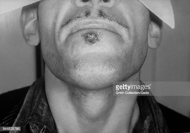 A photograph of a primary syphilitic chancre of the lower lip due to Treponema pallidum bacteria 1971 A patient with a typical syphilitic chancre...