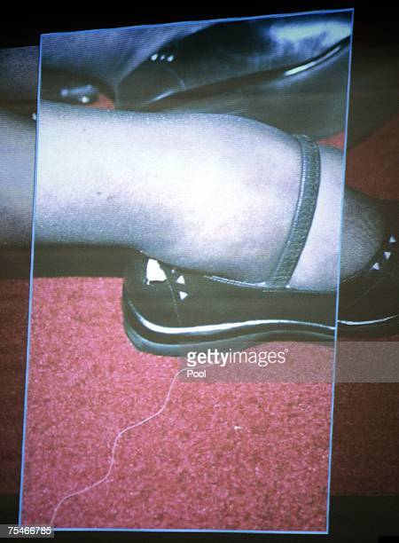 A photograph of actress Lana Clarkson's ankle after her shooting death is projected at Phil Spector's murder trial in Superior Court July 18 2007 in...