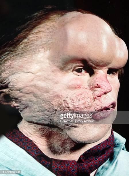 "Photograph of John Hurt as ""Joseph Merrick"" in the Elephant Man movie. Joseph Carey Merrick an English man who suffered with severe deformities...."