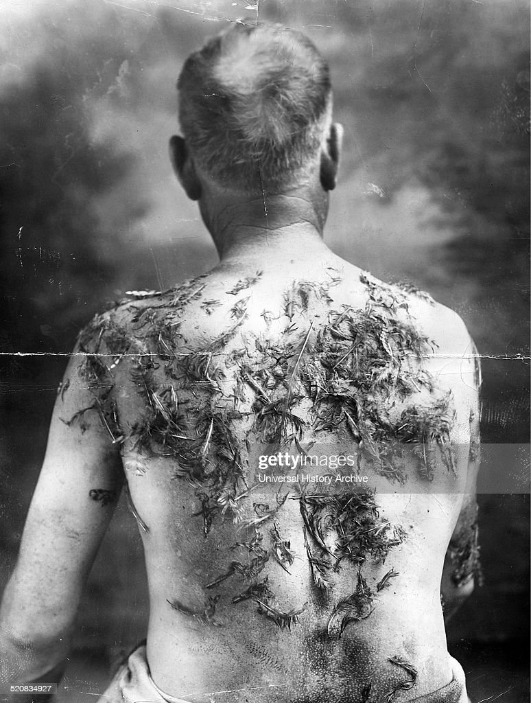 John Meints's injuries suffered during World War I. : Nachrichtenfoto