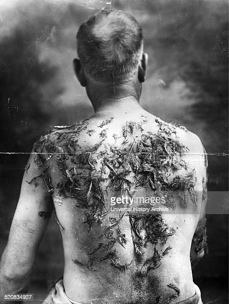 Photograph of John Meints a GermanAmerican farmer who suffered these injuries during World War I John Meints was tarred and feathered in Minnesota...