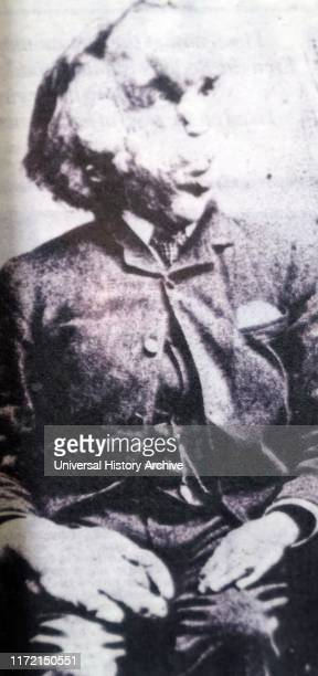 Photograph of Joseph Merrick Joseph Carey Merrick an English man who suffered with severe deformities Merrick worked at a freak show as the Elephant...