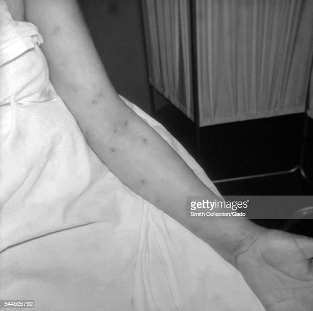 Photograph of secondary syphilitic papular rash on a patient's left arm 1971 A patient with a papular rash on the left arm that developed during...