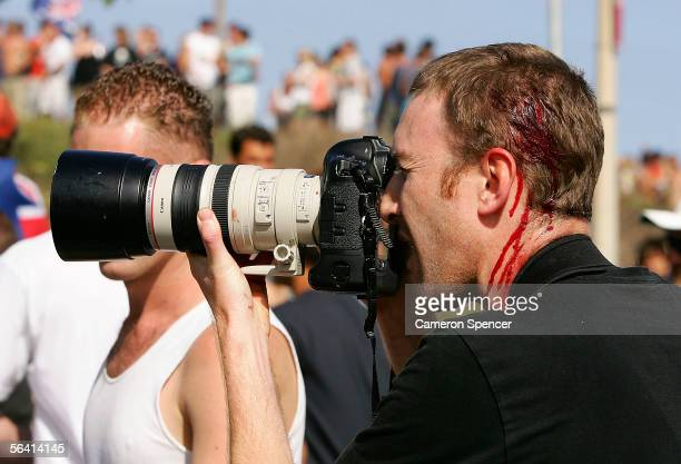 A photographer is seen with head wounds after youths threw glass bottles at police and a passing ambulance during unrest at Cronulla beach December...