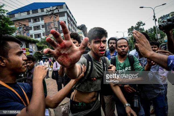 A photographer is targetted during a student protest in Dhaka on August 5 following the deaths of two college students in a road accident Bangladesh...