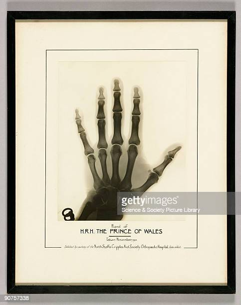 Photographic print of an Xray of the hand of the Prince of Wales later Edward VIII taken in November 1931 almost certainly at The North Staffs...