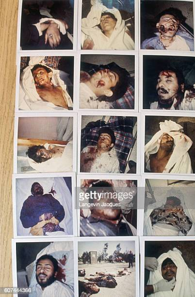 Photographs show Kuwaiti victims tortured by Iraqi forces during Persian Gulf War In August of 1990 Iraqi president Saddam Hussein invaded Kuwait...