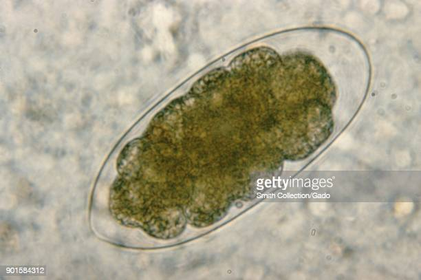 Photomicrograph of an egg from the Trichostrongylos species a parasite nematode which can cause infections in humans 1979 Image courtesy CDC