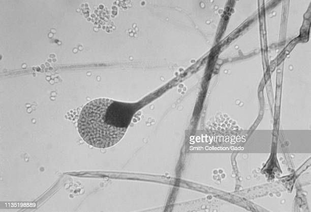 Photomicrograph of mature sporangia of the Mucor species filamentous fungus, 1955. Image courtesy Centers for Disease Control and Prevention / Dr...