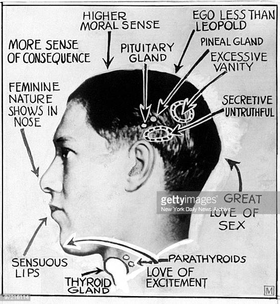 A phrenology diagram of Richard Loeb one of the slayers of Robert Franks in Chicago