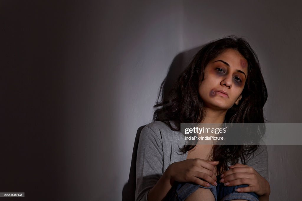Physically abused woman : Stock Photo