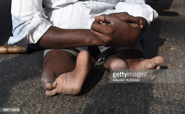A physically challenged Indian particpant takes part in a protest rally held to mark International Day of People with Disability in New Delhi on...