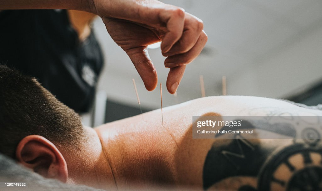 Physio performing acupuncture on a Patient : Stock Photo