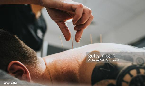 physio performing acupuncture on a patient - back stock pictures, royalty-free photos & images