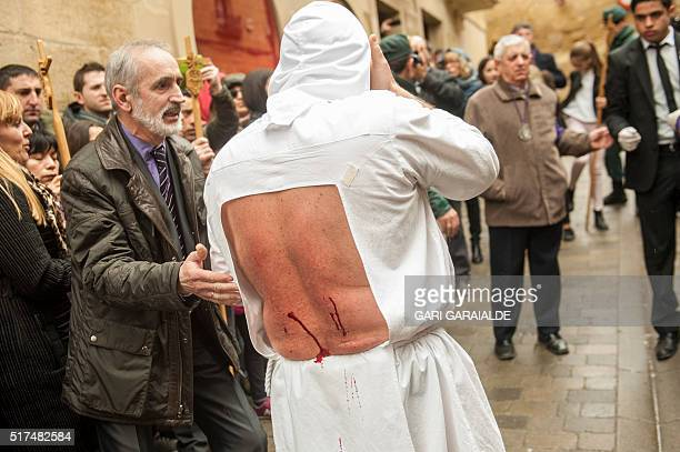 A 'Picao' penitent bleeds after self flagelation during the holy week procession in San Vicente de la Sonsierra in Northern Spain on March 25 2016...