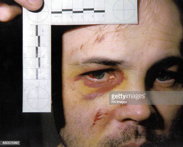 Picture dated 13/09/94 of Andrew Russell Two former IRA prisoners sued the Home Office for damages over injuries they claim were inflicted on them by...