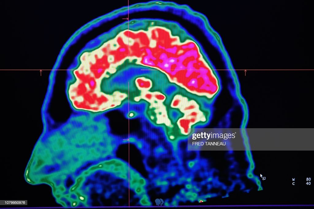 FRANCE-HEALTH-HOSPITAL-SCIENCE-RESEARCH : News Photo