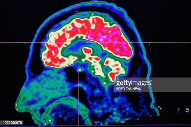 A picture of a human brain taken by a positron emission tomography scanner also called PET scan is seen on a screen on January 9 at the Regional and...
