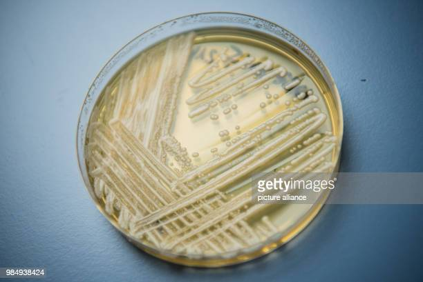 Picture of the yeast candida auris in a petri dish taken in a laboratory of Wuerzburg University in Wuerzburg Germany 23 January 2018 There has been...