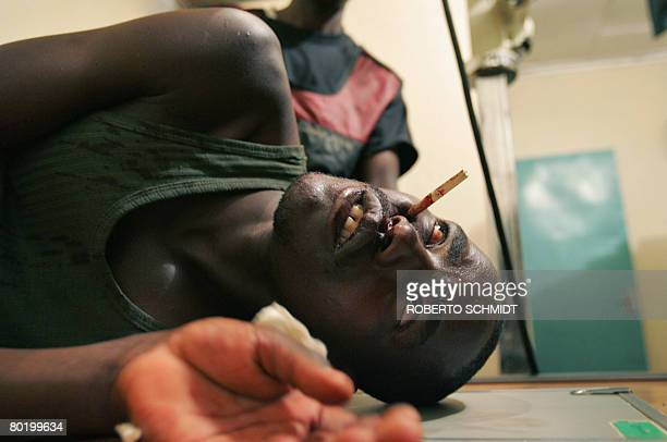 Picture shows a Massai warrior who was shot in the face by an arrow during a bow and arrow battle against Kalenjin tribe warriors in the Kapune Hill...