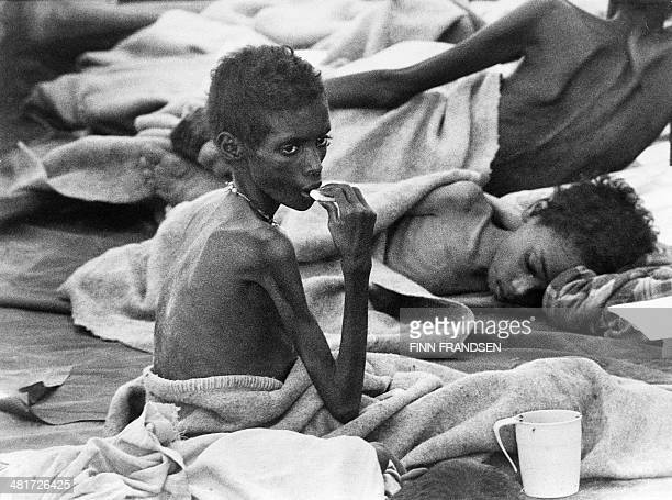 Picture taken in November 1984 in Ethiopia of a child suffering of starvation treated in a medical and food's distribution center Developed countries...