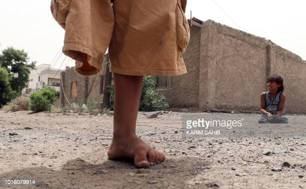 A picture taken on August 9 2018 during a trip in Yemen organised by the UAE's National Media Council shows Yemeni children whose legs were amputated...