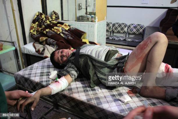 TOPSHOT A picture taken on December 17 2017 shows a bandaged Syrian boy lying on an operating bed at an emergency room in the rebelheld town of Douma...