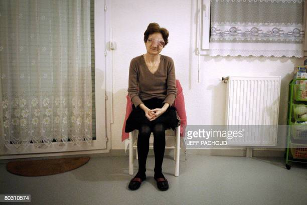 Picture taken on February 26 2008, of Frenchwoman Chantal Sebire, suffering from esthesioneuroblastoma an uncommon malignant neoplasm of the nasal...