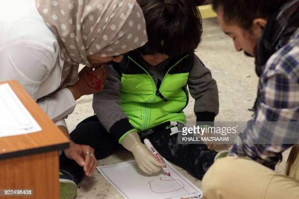 A picture taken on January 16 shows threeyearold child Ruwayd using her new prosthetic arm to draw shapes on a piece of paper at the Doctors Without...