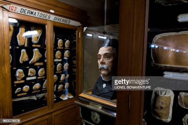 A picture taken on May 17 2018 shows the statue of French wax moulder and curator Jules Baretta at the museum casts of people suffering...