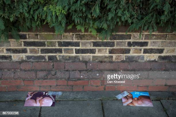 Pictures of babies at various stages of development are placed outside the Marie Stopes Abortion Clinic by antiabortion protesters on October 27 2017...