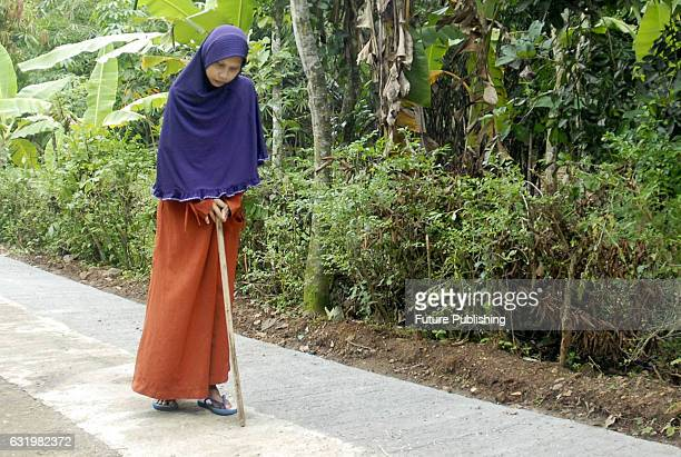 Pictures show Sulami a woman from Sragen is suffering from a rare disease that turns her in to a rigid gradually within 25 years on January 18 2017...