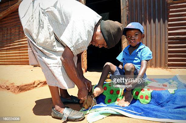 Pietros Mokunke at his home in the Goedgevondentownship on January 24 in Ventersdorp South Africa Pietros was born with a harelip and split pallet...