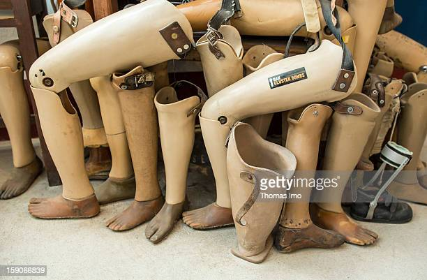A pile of artificial lower legs at COPE the documentation and rehabilitation centre for the victims of landmines and cluster munitions on November 05...