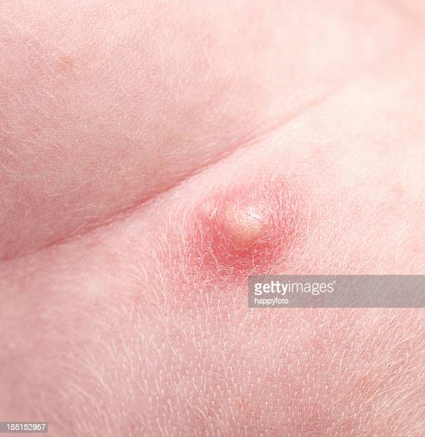 pimple - bumpy stock photos and pictures