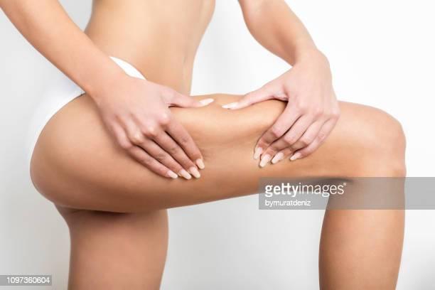 pinching thigh cellulite - cellulite foto e immagini stock