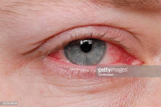 Ojos rosa