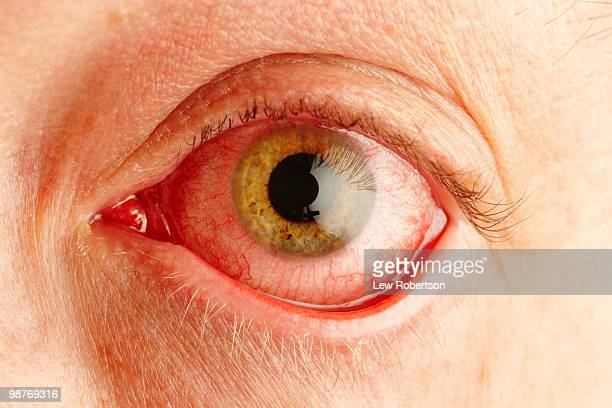 pink eye - conjunctivitis stock pictures, royalty-free photos & images