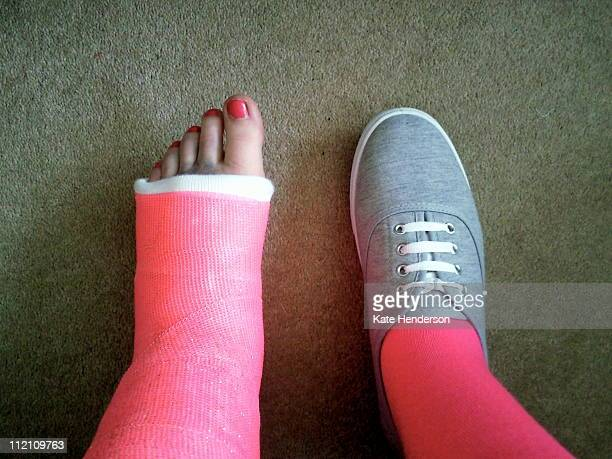 pink  foot - cast colors for broken bones stock pictures, royalty-free photos & images