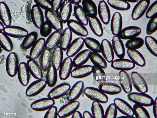 Pinworms a pápa fotón, Pinworm fertőzést hívnak