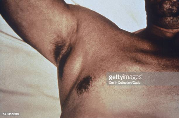 Plague patient displying a swollen axillary lymph node After the incubation period of 26 days symptoms of the plague appear including severe malaise...