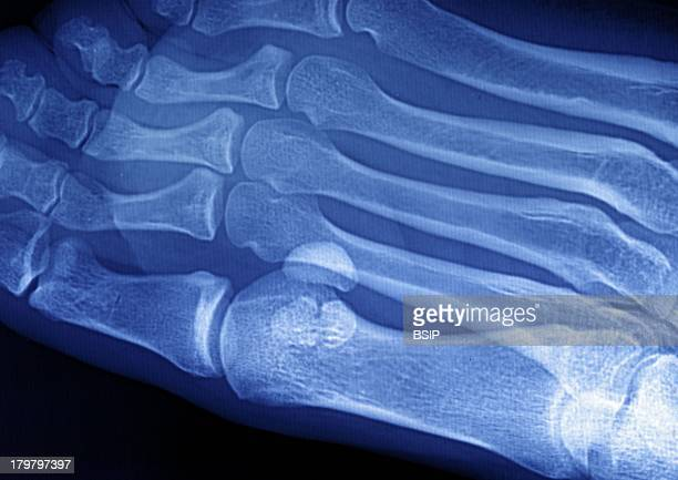 Plantar Wart, Foot X-Ray, Two Warts Between The Big Toe And The Index Of The Right Foot.