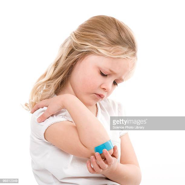 plaster on a girl's elbow - healing wound stock pictures, royalty-free photos & images