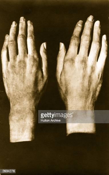 Plastercasts of Ludwig Van Beethoven's hands