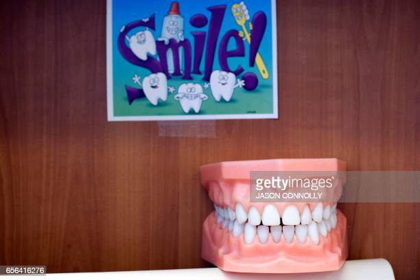 A plastic model of teeth is used by dental staff during patient visits at Inner City Health Center in Denver Colorado on March 15 2017 Inner City...