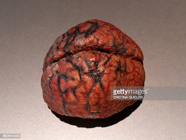 A plastinated human brain is on display at the 'Casino de la Exposicion' cultural center in Seville on November 30 on the eve of the opening of the...
