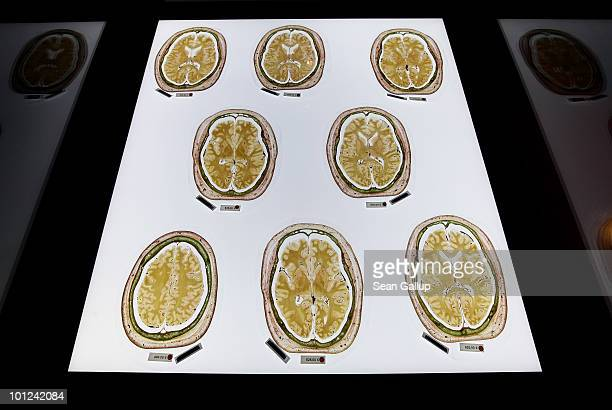 Plastinated slices of the human brain marked with red dots to indicate that only institutions may buy them lie on display for sale for up to EUR 625...