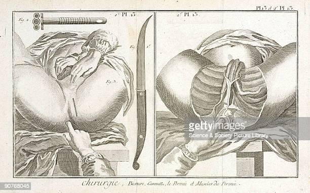 Plate 13 showing two surgical instruments and anatomical diagrams of the perineum and the muscles of the perineum From the 1780 quarto edition of 'La...