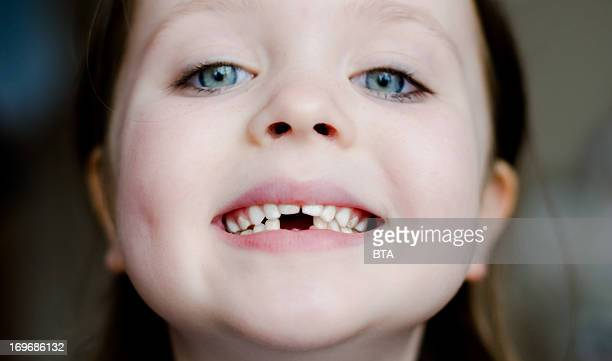 please mind the gap - missing teeth stock photos and pictures