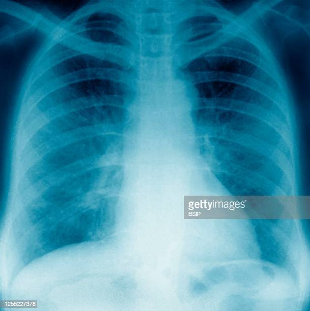 Pneumonia with radiological appearance in frosted glass it is due to partial filling of the alveolar lumens and / or thickening of the alveolar...